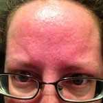 An acute rosacea flare up. I've never had one, at least not like this.  It's horrifying. I'm not even going to work. My face is burning and covered with whiteheads and pustules.
